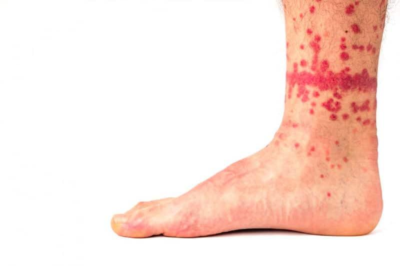 Picaduras de pulgas en el tobillo
